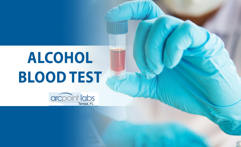 alco blood test