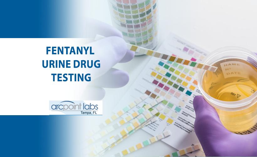 fentanyl urine drug testing