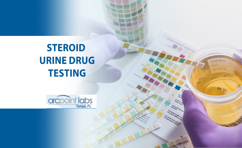 steroid urine drug test