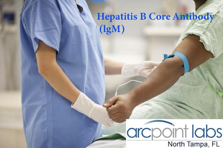 Hepatitis B Core Antibody (lgM)